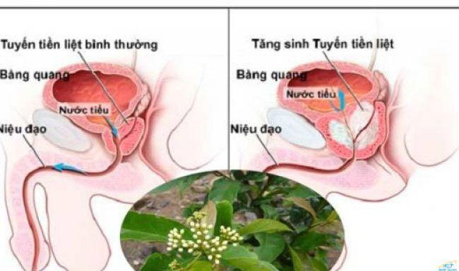 Cây xạ đen có nhiều tác dụng trong việc điều trị bệnh u xơ tiền liệt tuyến lành tính