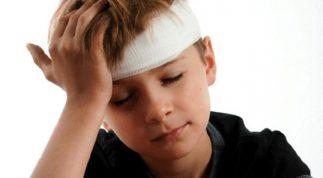 Chấn thương đầu nhẹ và các triệu chứng dấu hiệu bệnh thường gặp nhất