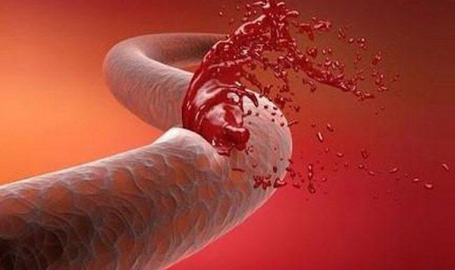 Chảy máu trong là tình trạng bệnh gì? Nguyên nhân & triệu chứng bệnh bạn cần biết