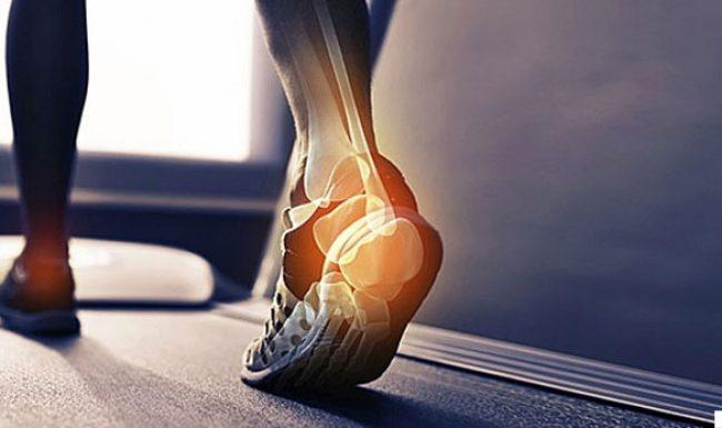 Đứt gân gót chân là bệnh gì? có nguy hiểm không? bao lâu thì lành?
