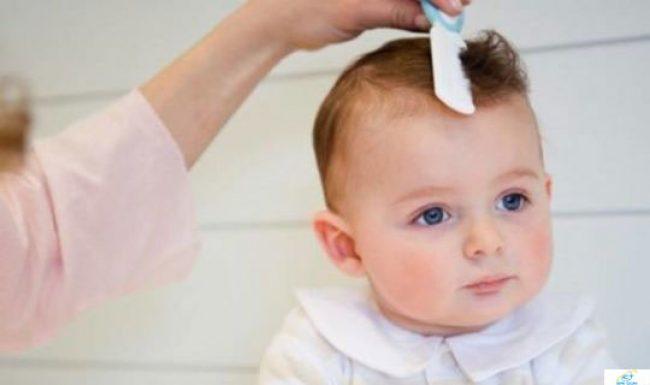 Tóc máu là gì? Có nên cắt tóc máu cho trẻ sơ sinh không?