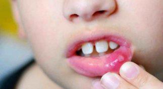 Trẻ bị nhiệt miệng phải làm sao? Cách chữa nhiệt miệng cho trẻ tại nhà